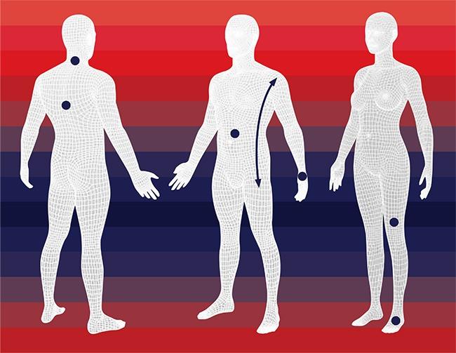 Orthèses du membre supérieur (doigts, main, poignet, coude),colliers cervicaux, ceintures et corsets, compression veineuse, orthèses plantaires