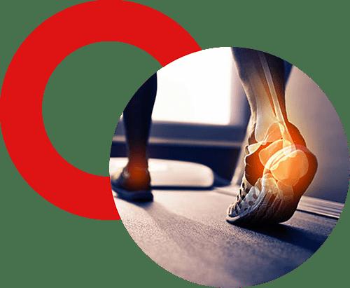 Orthopédie générale