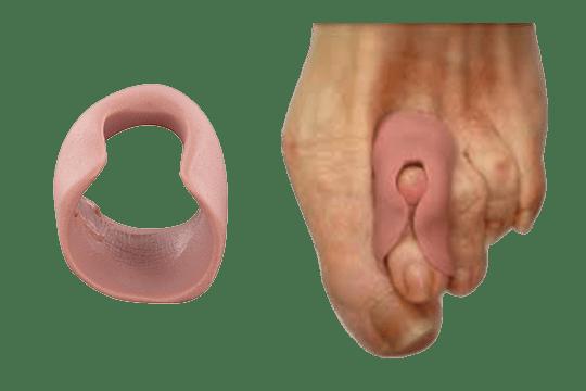 L'orthoplastie est un appareillage d'orteil sur mesure